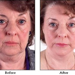 What Is Facial Surgery?