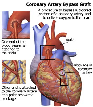 coronary artery bypass graft