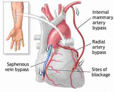 internal mammary arteries bypass
